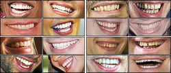 This is an image of British celebrities' teeth before an American dentist got his hands on their chops.